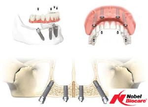 dentalni_5